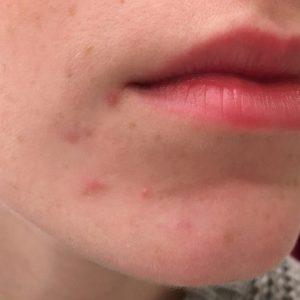 skin-2-768x768